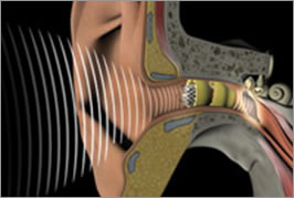 implantable hearing aids